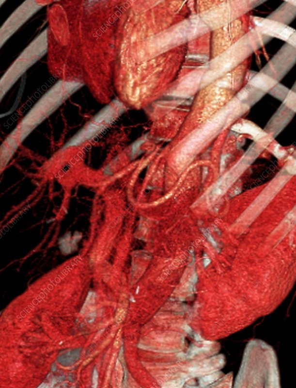 Aortic artery prosthesis, 3D CT scan