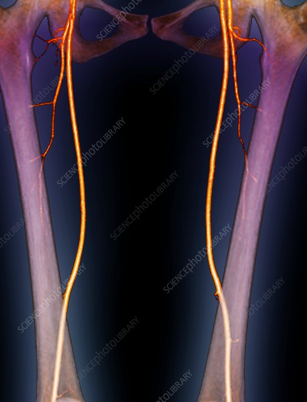 Femoral arteries, 3D CT scan