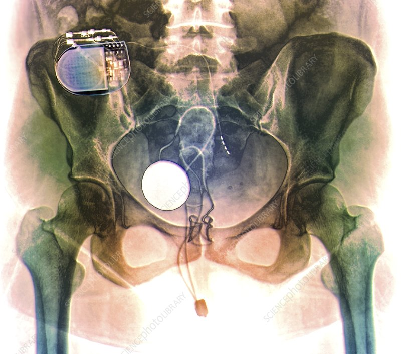 Urinary incontinence treatment, X-ray