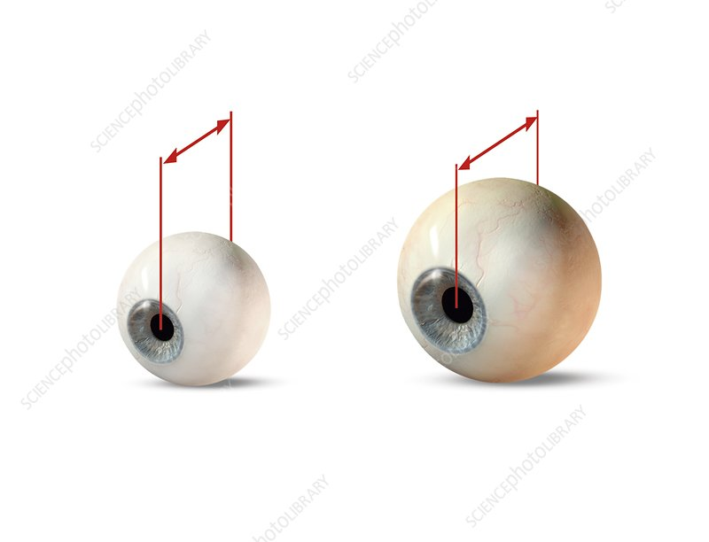 Eye size comparison, artwork