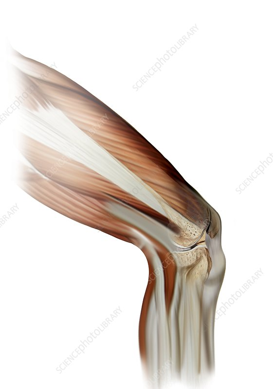 Damaged knee ligament, artwork