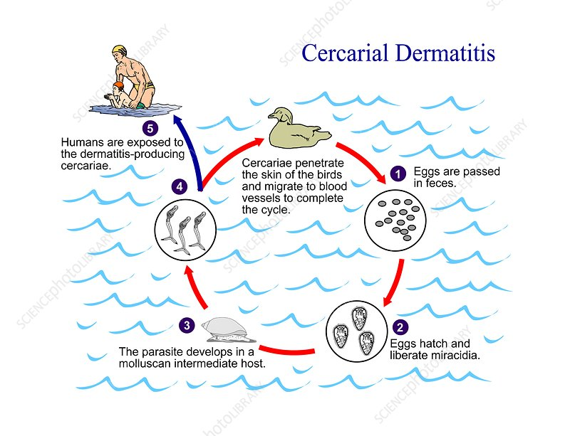 Cercarial dermatitis parasite life cycle