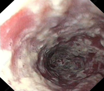 Thrush in the oesophagus