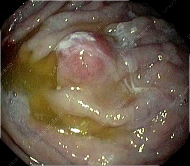 Carcinoid tumour in the stomach