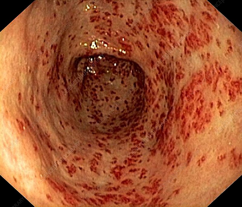 Vascular ectasia in the stomach