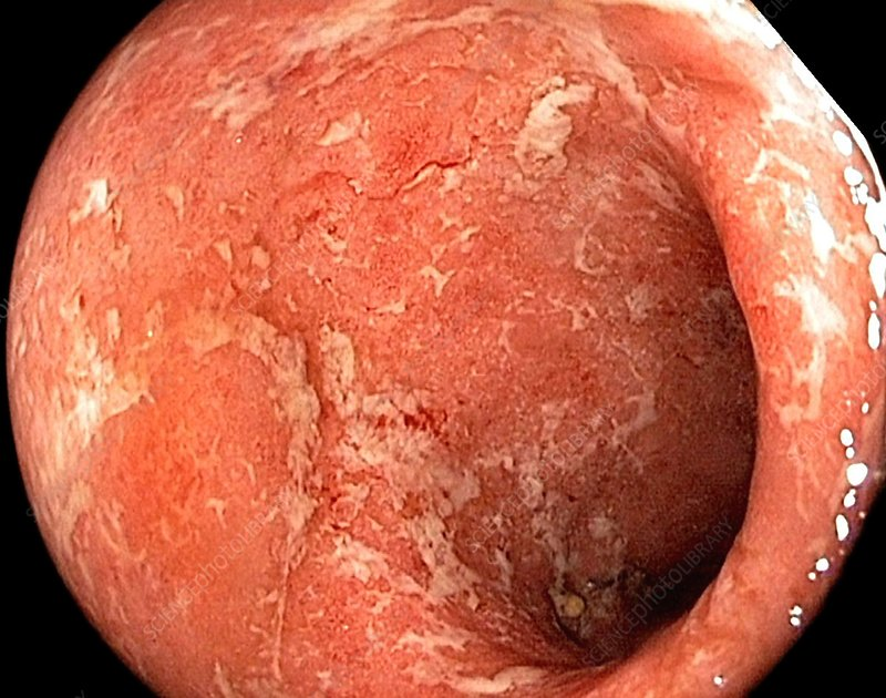 Ulcerative colitis in the rectum