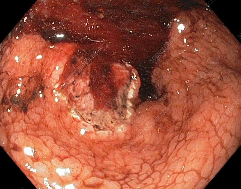 cancer gastric ulcerat
