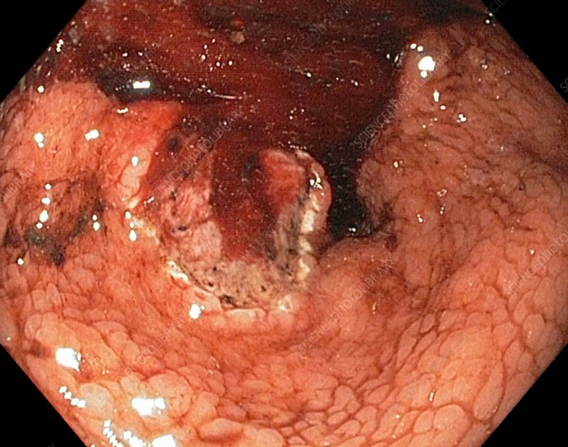 Bleeding stomach ulcer with cancer