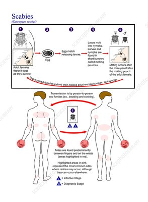 Scabies parasite life cycle