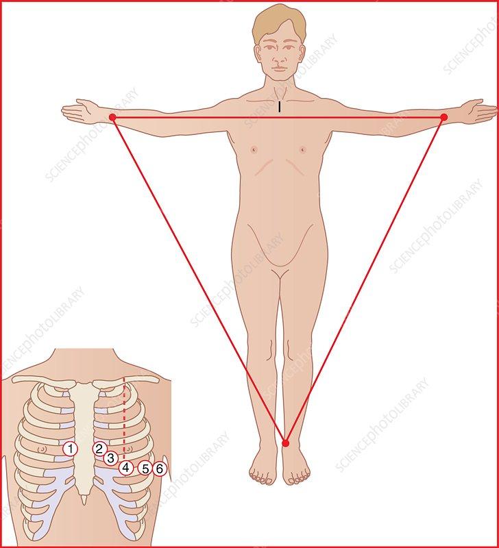 Ekg Lead Placement. ECG electrode placement