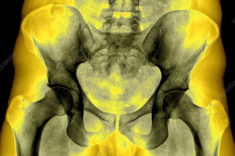 Healthy bones of the pelvis, X-ray