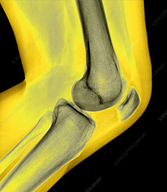 Healthy knee joint, X-ray