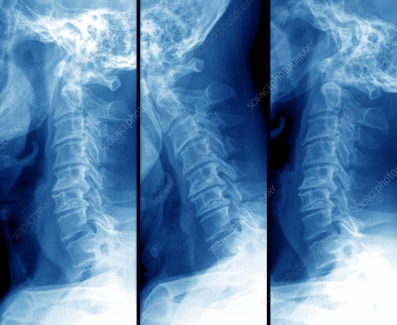 Arthritis of the neck bones, X-ray