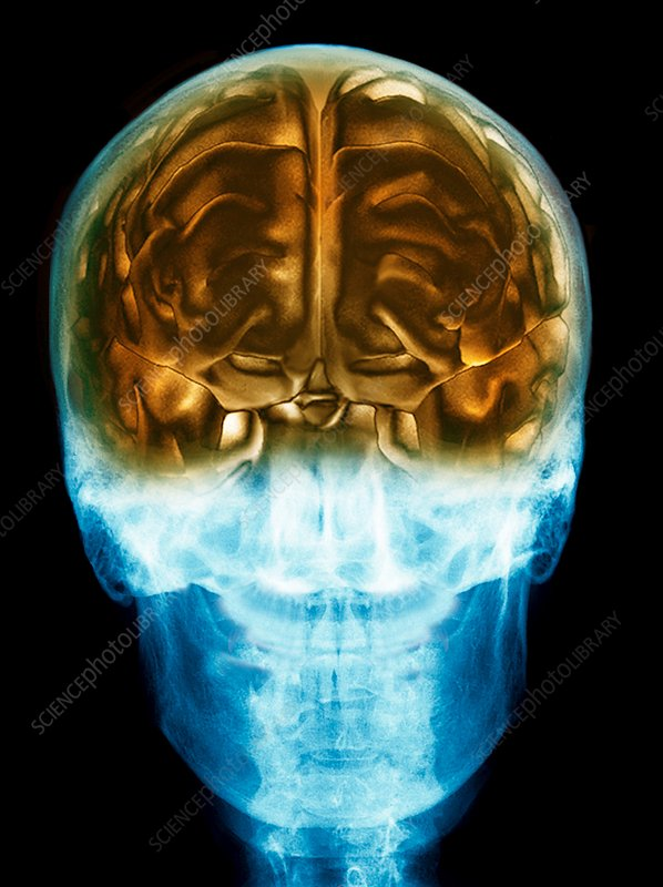 Healthy brain in the skull, 3D MRI scan