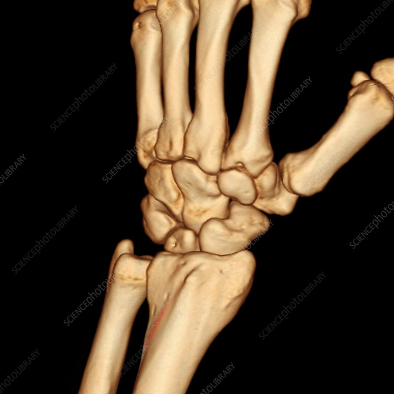 Healthy wrist bones, 3D CT scan