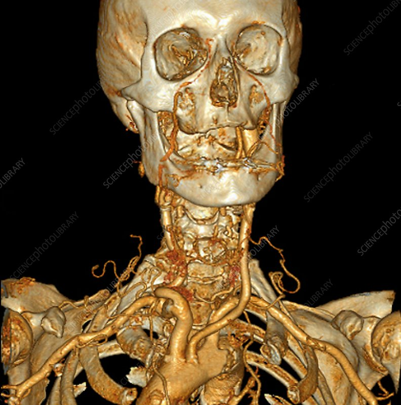 Neck and head arteries, 3D angio-CT scan