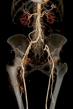 Thrombosis in iliac artery, 3D CT scan