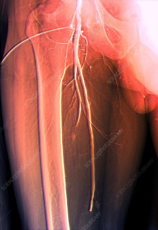 Thrombosis in femoral artery, angiogram