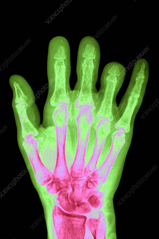 Hand in Turner's syndrome, X-ray
