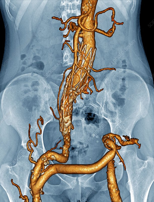 Stent and artery bypass, 3D angio-CT scan