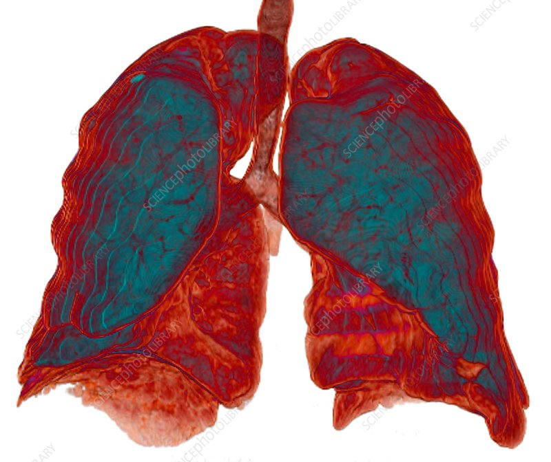 Healthy lungs, 3D CT scan