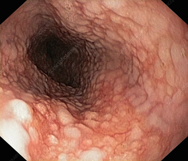 Cowden's syndrome of the oesophagus