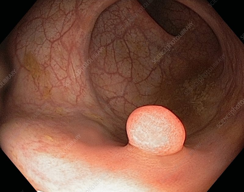 Pedunculated polyp in the colon