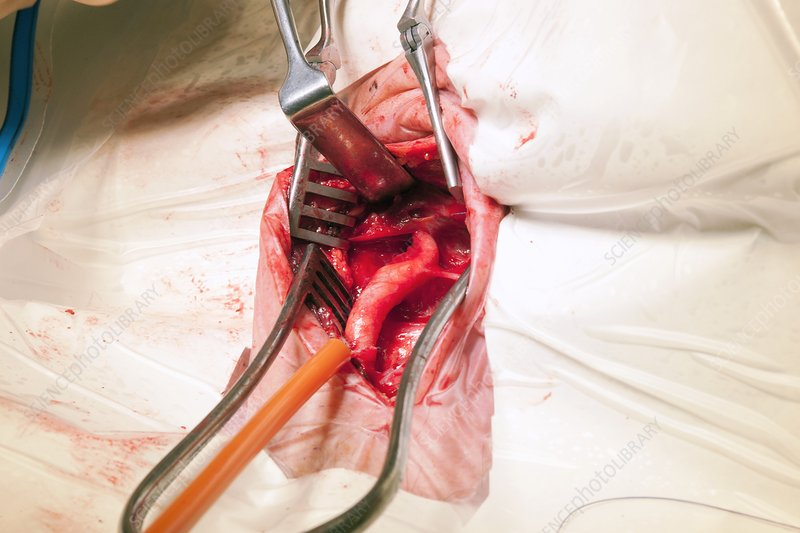 Carotid endarterectomy surgery