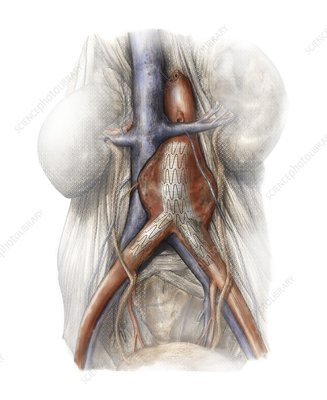 Abdominal aortic aneurysm, artwork