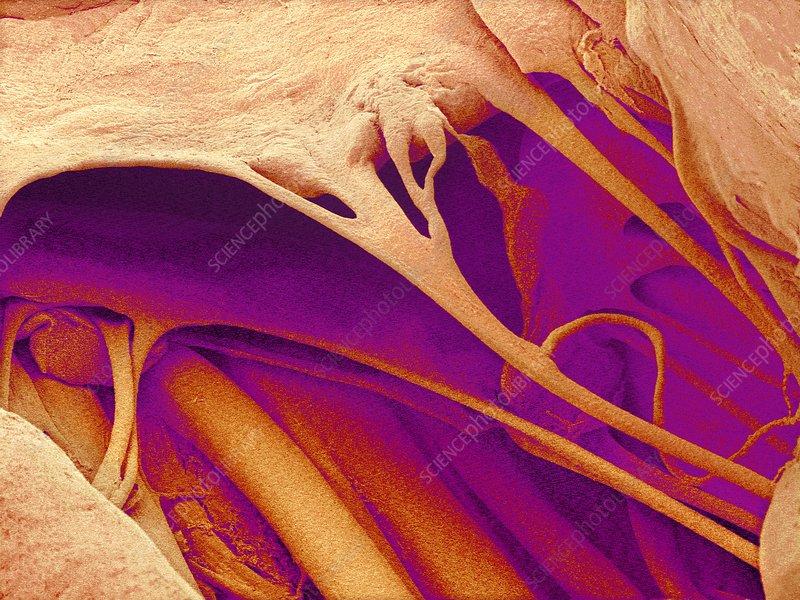 Heart valve and strings, SEM