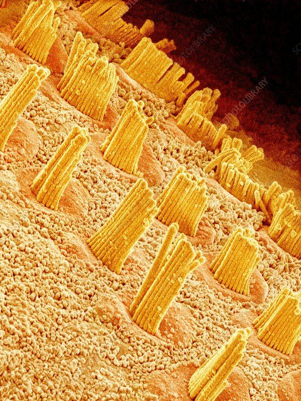 Inner ear hair cells, SEM