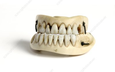 Ivory dentures with human teeth