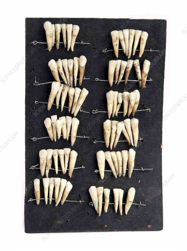 Human teeth strung up ready for sale