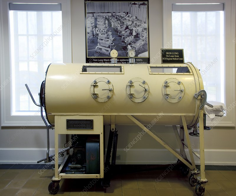 Iron lung from the 1930s