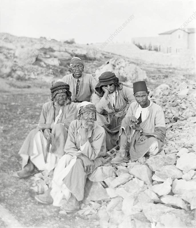 Lepers, Middle East, early 20th century