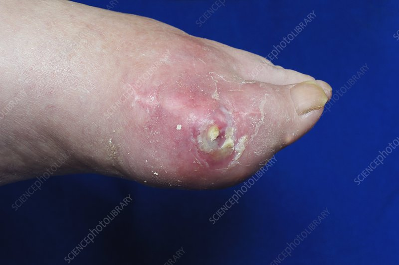 Gout of the foot with ulceration