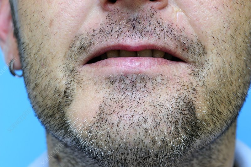Hair loss (alopecia areata) on the chin
