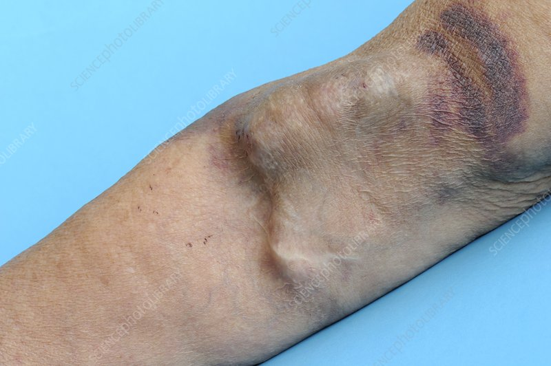 AV fistula in the arm for renal dialysis