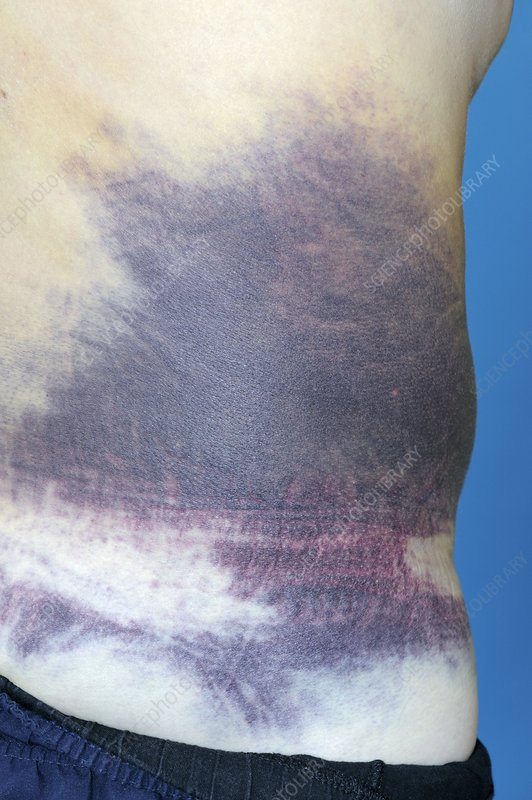 Bruising of the torso from a fall