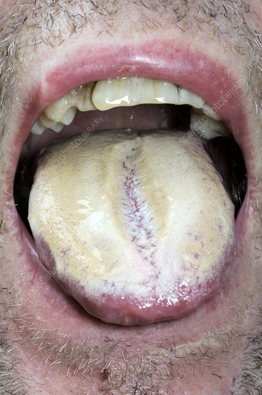 Thrush (candidiasis) of the tongue