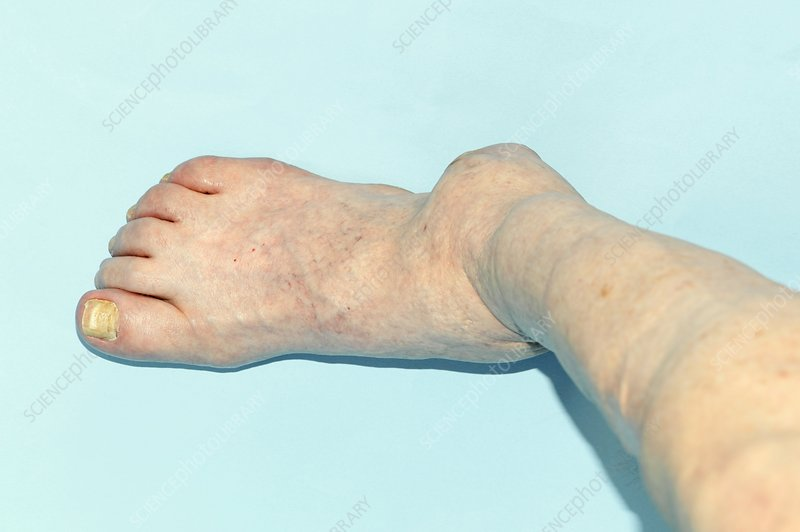 Arthritic ankle in Charcot's disease