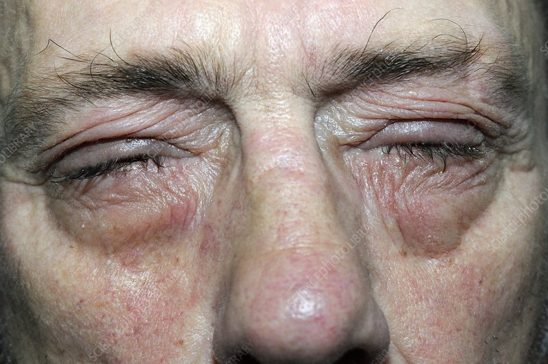 Conjunctivitis of the eyes