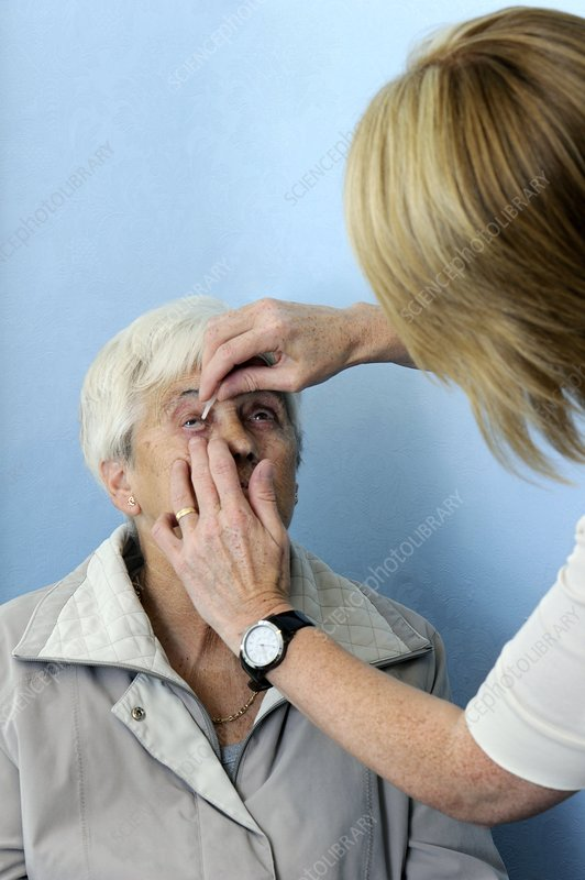 Retinal screening for diabetics