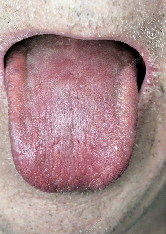 Dry tongue in a man
