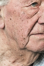 Seborrhoeic warts on the face