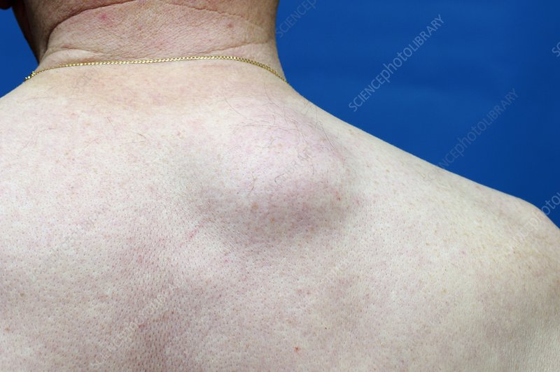 Lipoma on the upper back