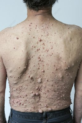 Man with neurofibromatosis