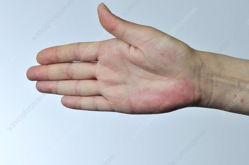 Fluoxetine And Itchy Hands