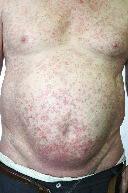 Psoriasis from immunosuppression therapy
