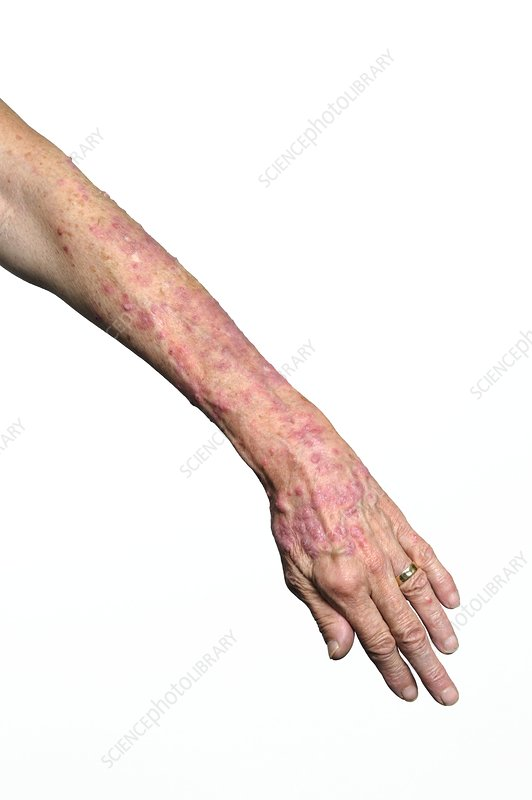 Psoriasis on the arm